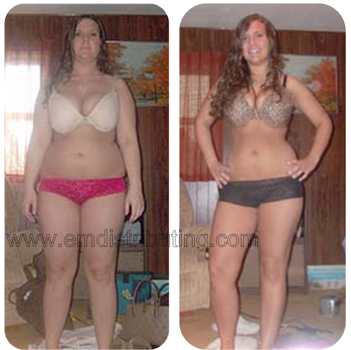 hcg diet before and after, hcg before and after, hcg weight loss ...